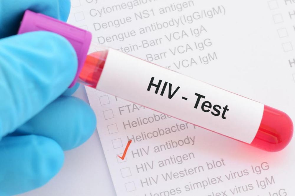 detectar el VIH-SIDA
